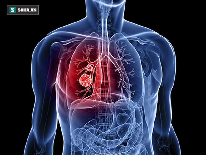 3 chuyên gia ung bướu chỉ mặt dấu hiệu sớm của 12 bệnh ung thư: Bạn nên biết ngay để phòng - Ảnh 3.