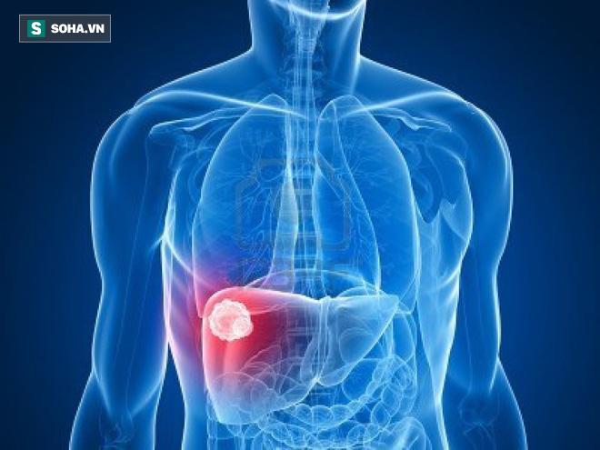 3 chuyên gia ung bướu chỉ mặt dấu hiệu sớm của 12 bệnh ung thư: Bạn nên biết ngay để phòng - Ảnh 4.