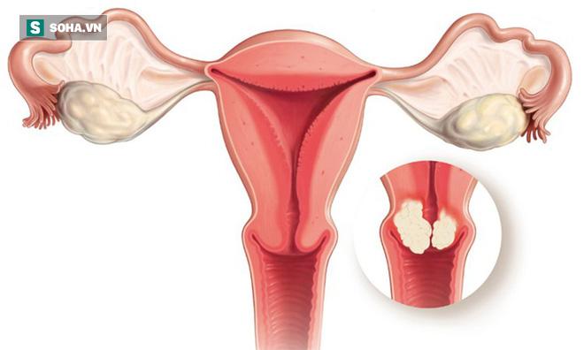 3 chuyên gia ung bướu chỉ mặt dấu hiệu sớm của 12 bệnh ung thư: Bạn nên biết ngay để phòng - Ảnh 5.