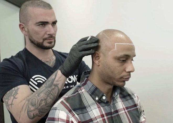 Bị hói đầu lâu năm, chàng trai quyết định xăm tóc giả trên đầu và cái kết khiến anh hoàn toàn hối hận - Ảnh 2.