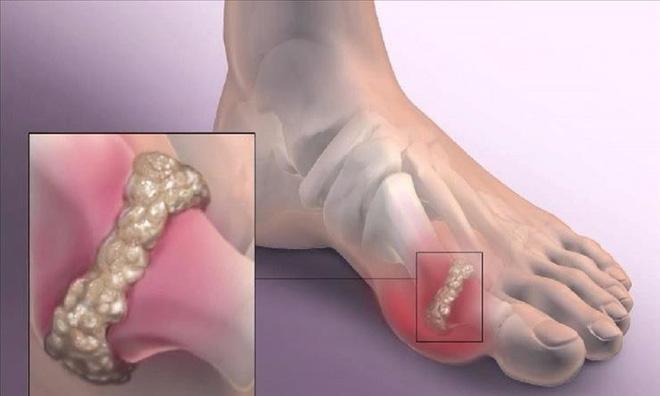 Lời khuyên 5 nên, 4 tránh ai cũng cần dùng để phòng chữa căn bệnh gây đau thấu xương - Ảnh 3.