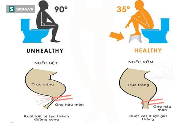 Đây mới là tư thế ngồi khi đi vệ sinh tốt nhất cho sức khoẻ  - Ảnh 1.
