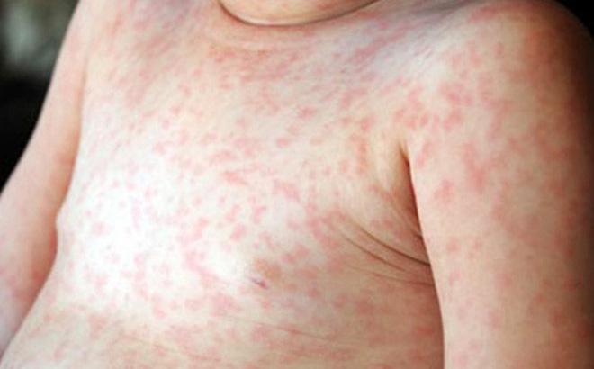 Trẻ có nguy cơ mắc căn bệnh gây lở loét, ngứa ngáy nếu uống kháng sinh trong 1 năm đầu đời