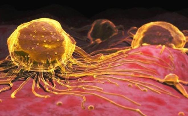Uống hạt nano vàng: Không tác dụng chữa ung thư, thậm chí gây độc