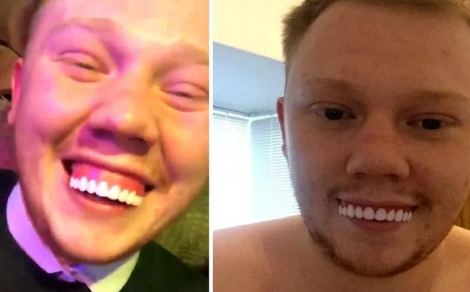 Hí hửng mua răng giả trên mạng, đến khi ướm vào miệng, chàng trai khiến cư dân mạng cười nghiêng ngả