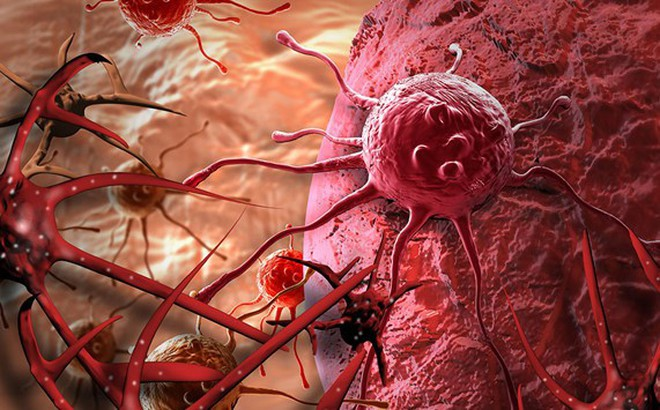 8 quan niệm sai lầm về bệnh ung thư cần từ bỏ ngay