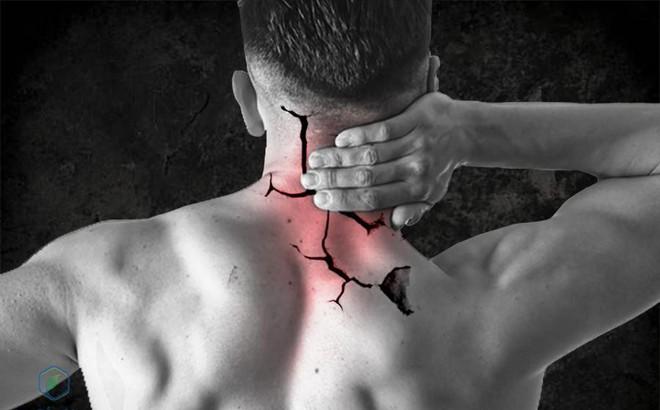 7 Bài thuốc chữa thoát vị đĩa đệm cột sống cổ bằng đông y hiệu quả