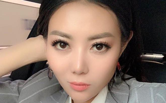 """Sau """"Quỳnh búp bê"""", Thanh Hương """"Lan cave"""" lộ ảnh phẫu thuật thẩm mỹ"""