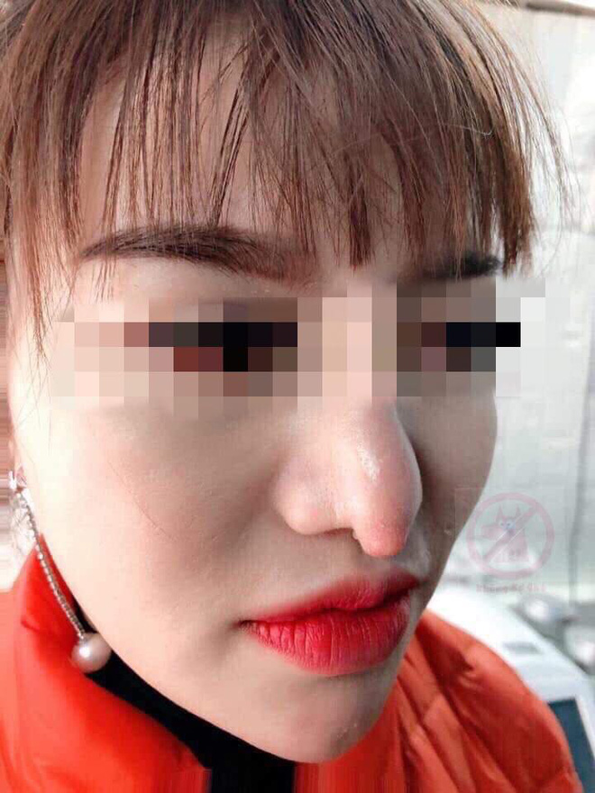 Chọn nhầm địa chỉ làm mũi dởm, cô gái bất lực với chiếc mũi khoằm tệ hơn bản gốc - ảnh 2