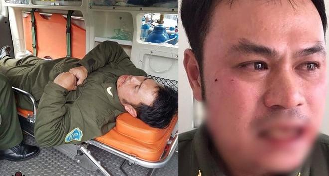 """Clip cận cảnh nhân viên an ninh sân bay Nội Bài bị """"cò"""" taxi túm tóc, đánh gãy răng - ảnh 2"""