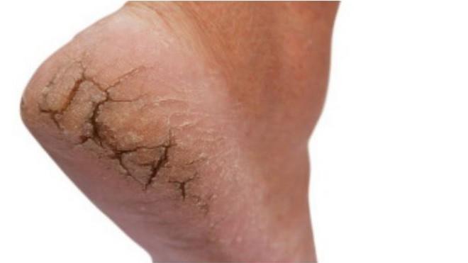 Có dấu hiệu này ở chân điều trị 1,2 tháng không hết phải nghĩ đến bệnh ung thư  - Ảnh 1.