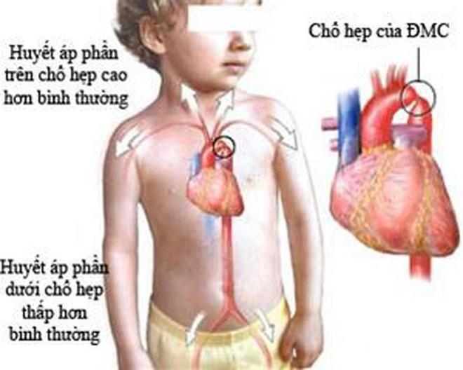 Nhận biết sớm một số bệnh tim bẩm sinh - Ảnh 1.