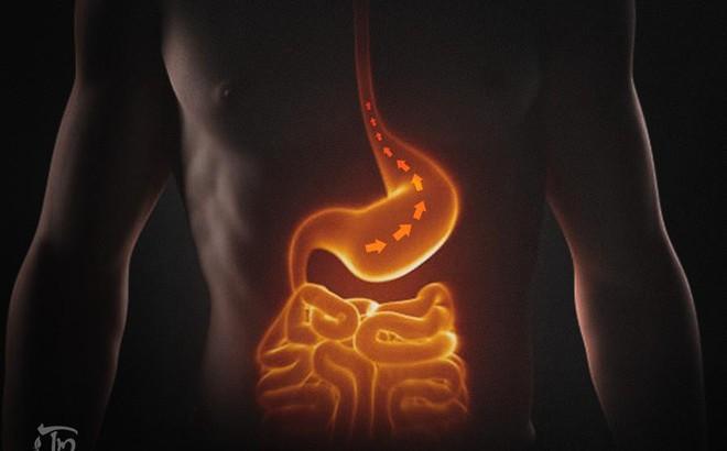 Trào ngược dạ dày: Nguyên nhân, triệu chứng và cách điều trị hiệu quả