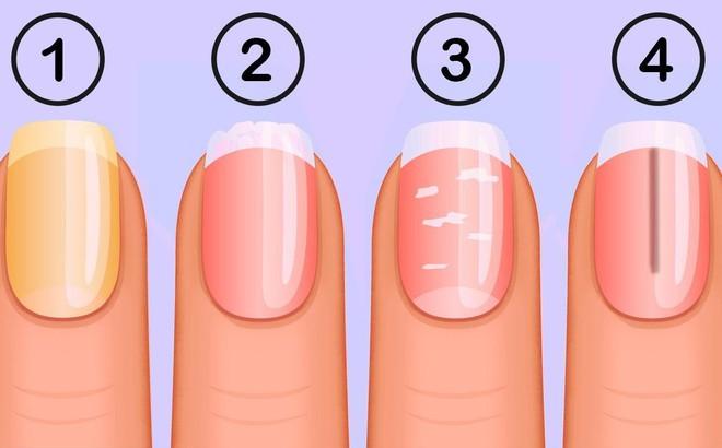 Kết quả hình ảnh cho Bạn có thể bị tiểu đường hoặc bệnh về máu nếu móng tay có những dấu hiệu này