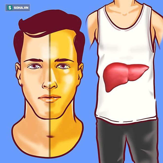 8 dấu hiệu cảnh báo bệnh gan: Nếu có triệu chứng là bạn cần đến bác sĩ càng sớm càng tốt - ảnh 1