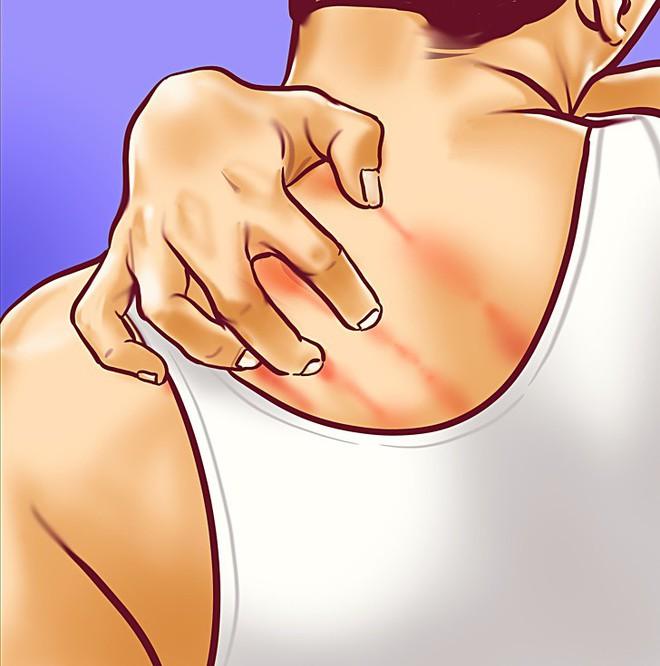8 dấu hiệu cảnh báo bệnh gan: Nếu có triệu chứng là bạn cần đến bác sĩ càng sớm càng tốt - ảnh 8