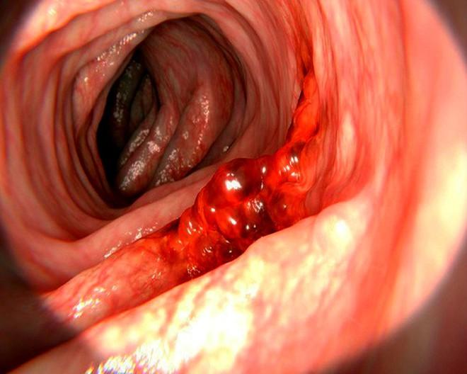 Chỉ cần có 2 dấu hiệu này là vết loét dạ dày có thể đang tiến triển thành ung thư - Ảnh 2.