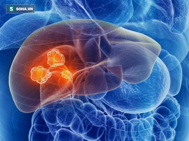 Cẩn thận với các khối u phát triển âm thầm trong gan: Đây là 4 tín hiệu sớm nhất cần biết - Ảnh 1.