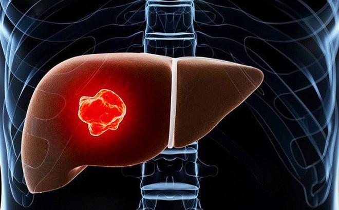 Cẩn thận với các khối u phát triển âm thầm trong gan: Đây là 4 tín hiệu sớm nhất cần biết