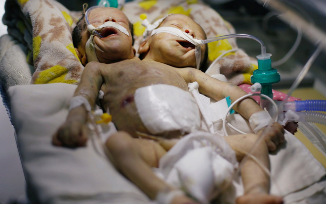 24h qua ảnh: Cảnh sát xử tử hai phạm nhân hiếp dâm bé trai ở Yemen - Ảnh 9.