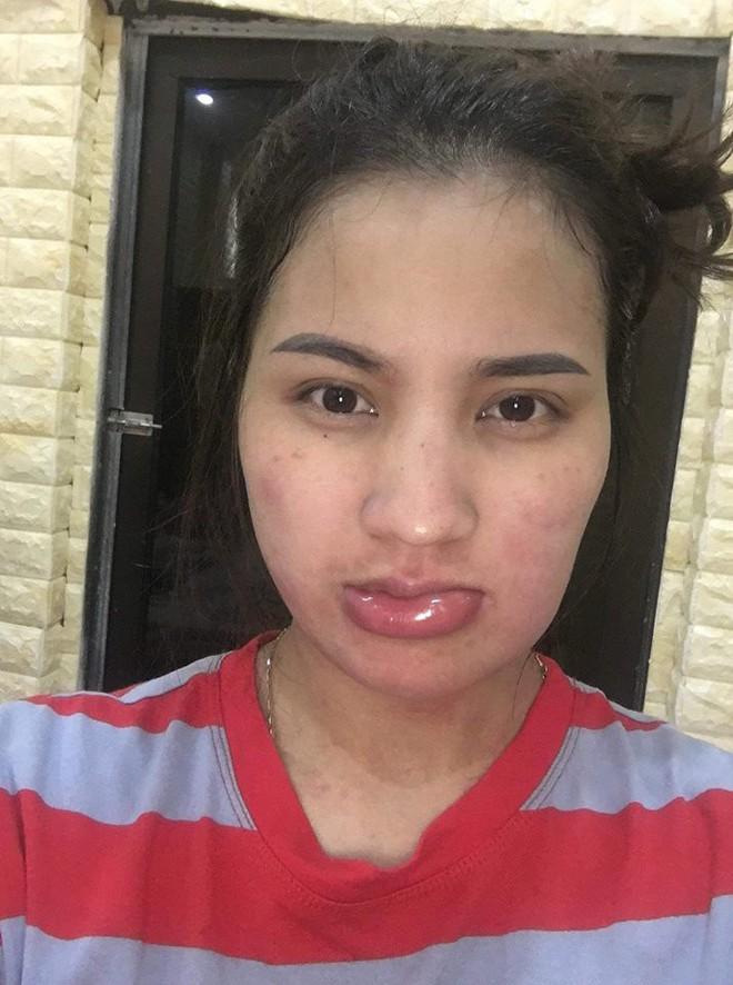 Đi picnic cuối tuần, người phụ nữ xinh đẹp bỗng mặt mũi biến dạng vì lí do không ngờ - Ảnh 3.