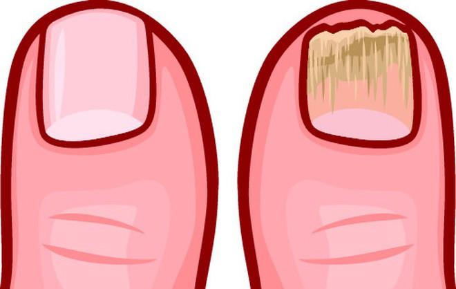 10 dấu hiệu cảnh báo cơ thể bị độc tố tấn công: Hãy nhanh thải độc ngay - Ảnh 9.