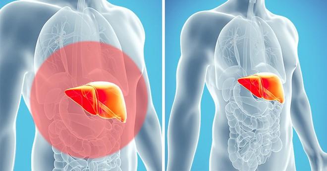10 dấu hiệu cảnh báo cơ thể bị độc tố tấn công: Hãy nhanh thải độc ngay - Ảnh 12.