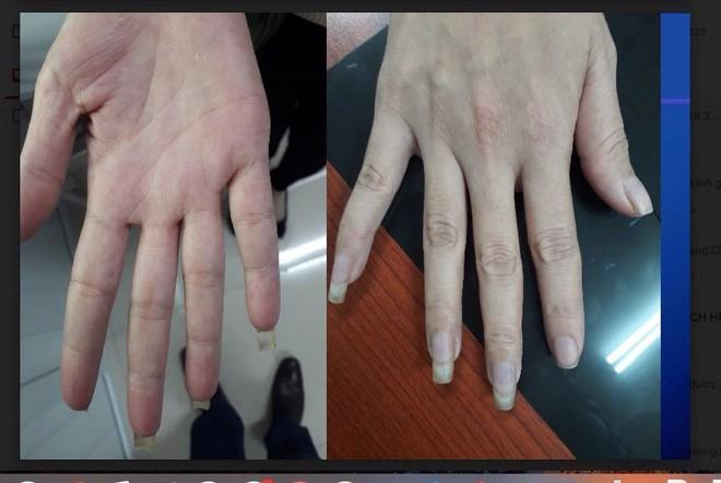Kẻ sọc trên ngón tay: Dấu hiệu căn bệnh khiến người mắc ngại không dám... lấy chồng  - Ảnh 2.