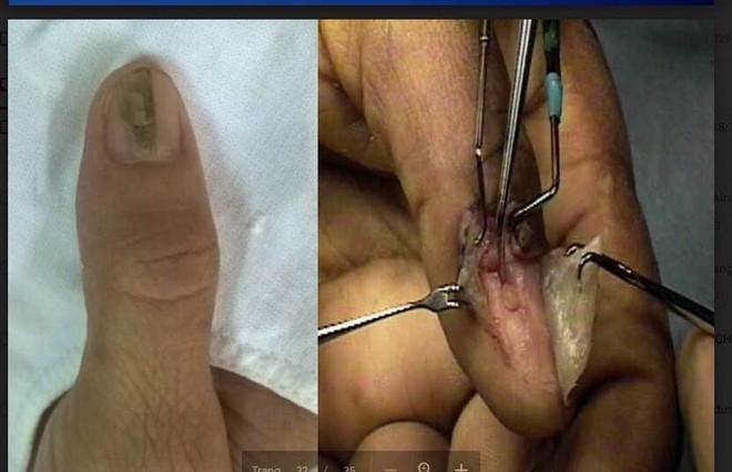 Kẻ sọc trên ngón tay: Dấu hiệu căn bệnh khiến người mắc ngại không dám... lấy chồng  - Ảnh 1.