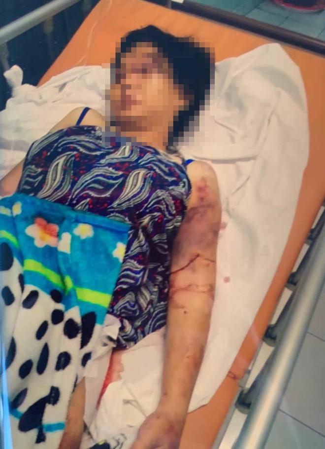 Khởi tố cô gái chủ mưu vụ tra tấn khiến bà bầu sinh non, thai nhi tử vong ở Sài Gòn - Ảnh 1.