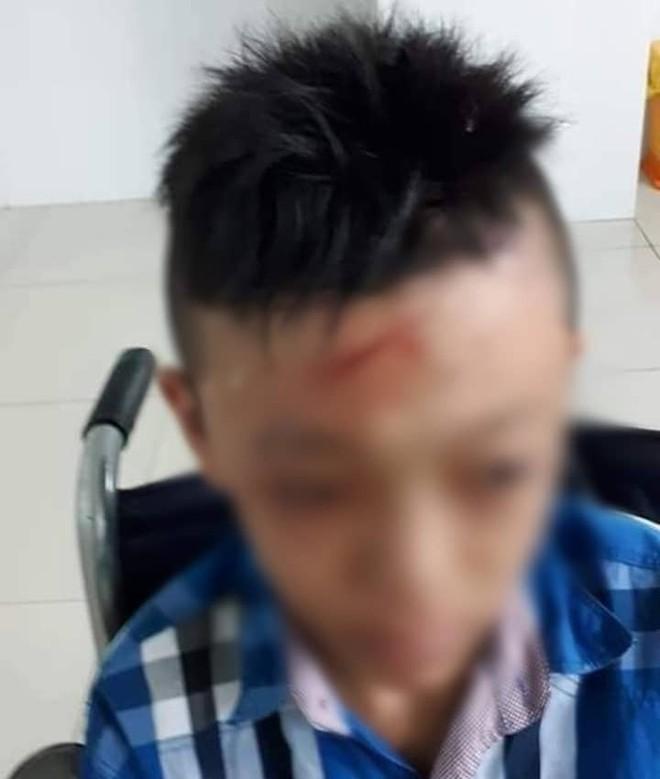 Nam sinh lớp 7 bị bạn đánh, đập đầu vào cửa kính chấn thương ngay tại trường học - Ảnh 2.