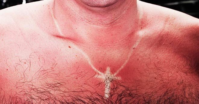 Điều gì làm cho làn da của bạn đỏ sau khi bị cháy nắng? - Ảnh 1.