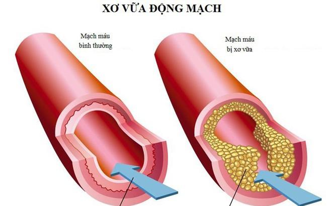 Tẩy sạch mạch máu để ngăn ngừa đột quỵ dựa vào công thức '3 cao, 4 thấp' nổi tiếng Đông y