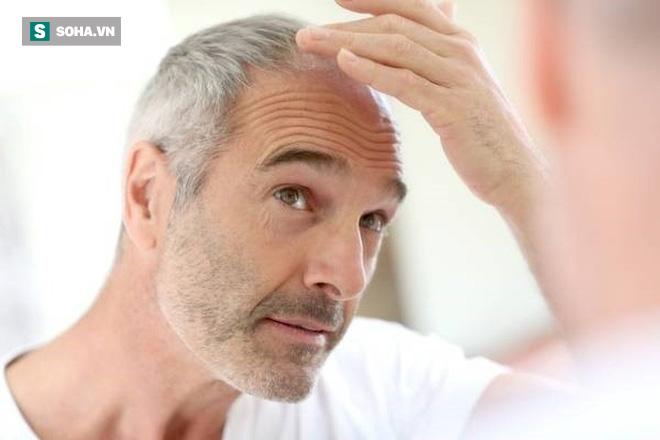 5 dấu hiệu cảnh báo nam giới bước vào giai đoạn lão hóa tăng tốc: Hãy sớm ngăn chặn - Ảnh 1.