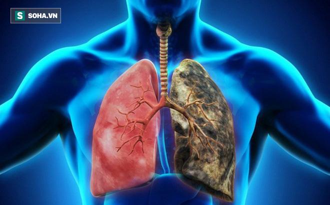 Người khỏe trước hết nhờ phổi: 6 việc giúp giải phóng phổi khỏi bệnh tật, ung thư - ảnh 1