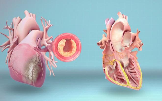 4 dấu hiệu cảnh báo tim của bạn đã gặp nguy hiểm: Hãy nhanh đi khám để tránh rủi ro