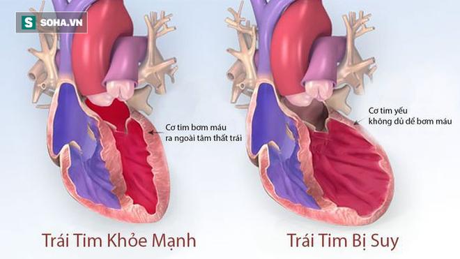 4 dấu hiệu cảnh báo tim của bạn đã gặp nguy hiểm: Hãy nhanh đi khám để tránh rủi ro - Ảnh 1.