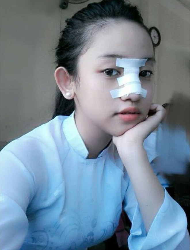 Thúy Vi không tiếc tay chi tiền tỷ phẫu thuật thẩm mỹ, nhưng lại nhận mình là 'hot girl sống khổ nhất Việt Nam' - ảnh 6