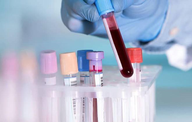 Ai cũng tưởng tầm soát ung thư là giải pháp phát hiện sớm mà không biết 3 tác hại này!