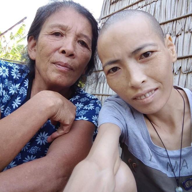 Người đàn ông Trà Vinh hơn 4 năm cưu mangcô gái bịung thư quen qua mạng - ảnh 2