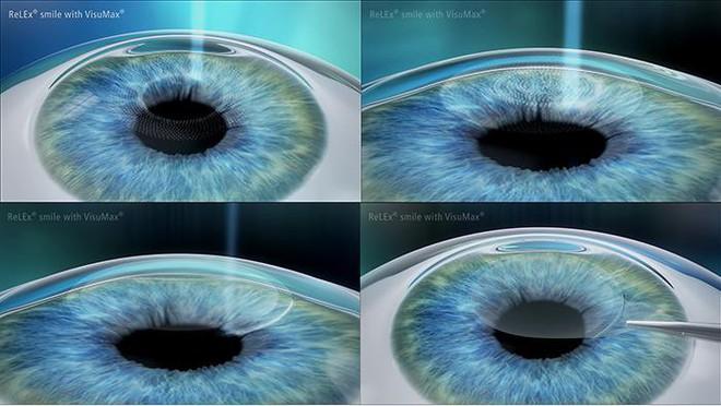 Cận thị dưới 10 diop chỉ tốn 10 phút điều trị với phẫu thuật ReLEx SMILE - Ảnh 2.