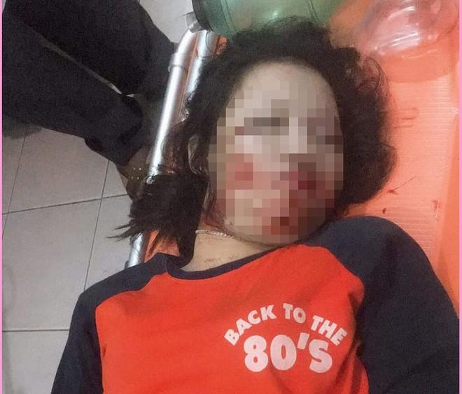 Truy tìm chiếc xe tải đâm trúng đường dây điện khiến nữ sinh 17 tuổi tử vong - Ảnh 1.