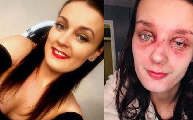Thiếu nữ trẻ bị bỏng mắt, suy giảm thị lực vì quả trứng luộc phát nổ và lời cảnh báo tới tất cả chúng ta