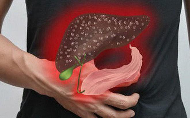 Đau bụng kéo dài cảnh báo bệnh ung thư nguy hiểm