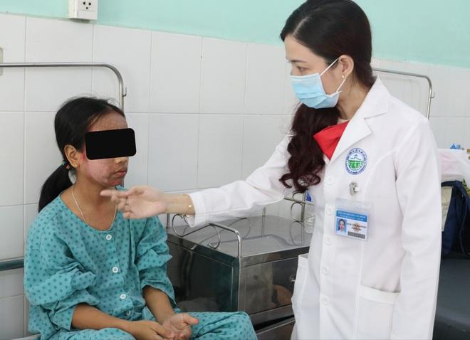 Thích trắng hồng, thiếu nữ 17 tuổi dùng kem lột cấp tốc khiến cả khuôn mặt bị phá nát - Ảnh 3.