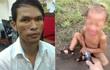 Vụ chích điện bé trai là trường hợp đầu tiên ghi nhận tại Campuchia