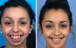 Ca phẫu thuật thay đổi hoàn toàn cuộc đời của cô gái 20 tuổi