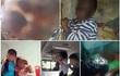 Cậu bé Nghệ An bị cháy đen toàn bộ khuôn mặt