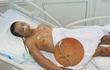 Truy tìm tung tích nạn nhân có hình xăm bên ngực phải nhập viện với nhiều vết thương
