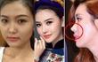 """Sao Việt xinh hơn hẳn sao châu Á về khoản """"dao kéo"""" mũi"""
